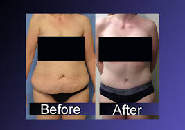 Massive Weight Loss Body Contouring